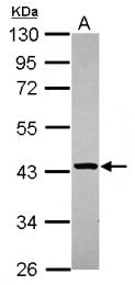 GTX119493 - STBD1 / Genethonin-1