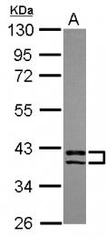 GTX119496 - PDLIM2