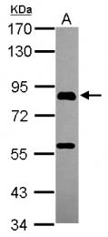 GTX119509 - PGBD1