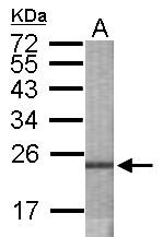 GTX119539 - OSBPL6