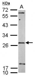 GTX119546 - U11/U12 snRNP 35 kDa protein