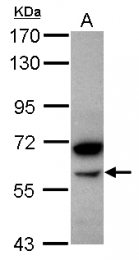 GTX119617 - Alpha-amylase 2B