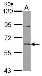 GTX119632 - IL1RL2 / IL1RRP2