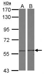 GTX119638 - CCT4 / TCP1 delta