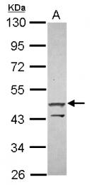 GTX119676 - ZNF645