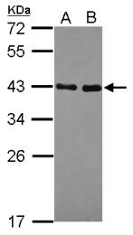 GTX119687 - NRBF2