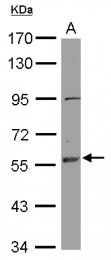 GTX119720 - Estrogen receptor beta