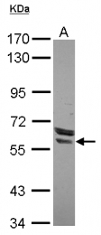 GTX119721 - Estrogen receptor beta