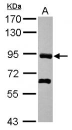 GTX119787 - PDZRN4