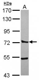 GTX119828 - CTTNBP2NL