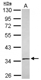GTX119934 - SLC25A36