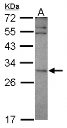 GTX119948 - Vacuolar-sorting protein SNF8
