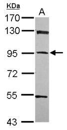 GTX119965 - PPFIBP1