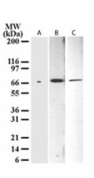 GTX11997 - Tumor protein p73 (TP73)