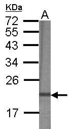 GTX120057 - Angiomotin-like protein 2
