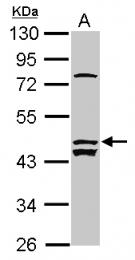 GTX120076 - ALS2CR12