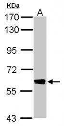 GTX120114 - DYNC1LI1