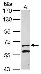GTX120173 - Kelch-like protein 13