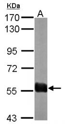 GTX120189 - Sorting nexin-27 (SNX27)