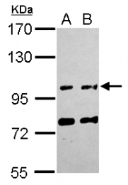 GTX120226 - FAM171A1