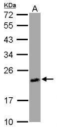 GTX120370 - Uracil phosphoribosyltransferase (UPRT)