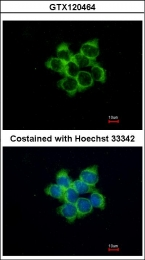 GTX120464 - Protein fuzzy homolog