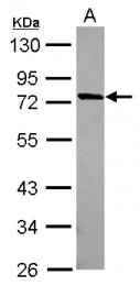 GTX120472 - MUM1L1
