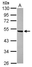 GTX120474 - WDR12