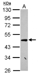 GTX120475 - CCDC17