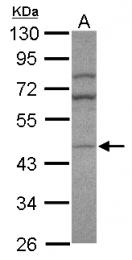 GTX120477 - AP1 complex subunit mu-2 / AP1M2