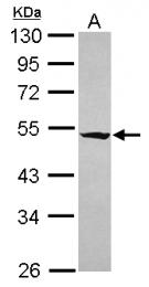 GTX120514 - RASGEF1A