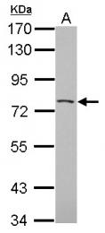 GTX120559 - PHACTR3