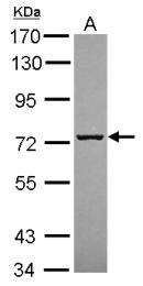 GTX120605 - SCFD1