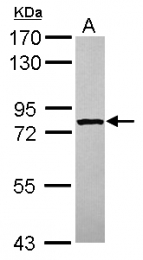 GTX120608 - STRBP / SPNR