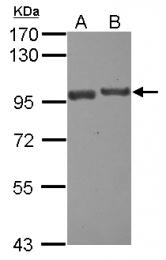 GTX120672 - USP6NL