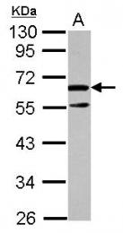 GTX120705 - Arginine decarboxylase / ADC
