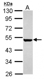 GTX120881 - Keratin-36 (KRT36)