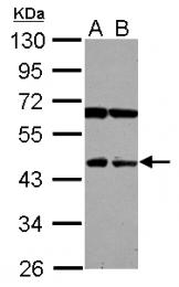GTX120923 - Sialidase-4