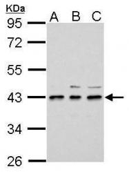 GTX121130 - Uridine phosphorylase 2 (UPP2)