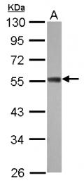 GTX121156 - ZC3H10