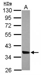 GTX121263 - MRPL44