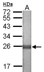 GTX121267 - NLRP7