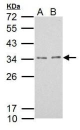 GTX121336 - TPRG1L