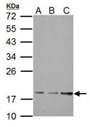 GTX121338 - TRAPPC3