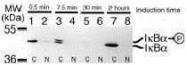 GTX12134 - NFKBIA / IKBA