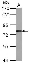 GTX121341 - TTC14