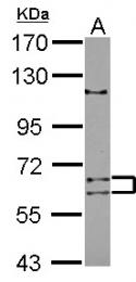 GTX121377 - ADAD1 / TENR