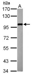 GTX121449 - ELP2 / STATIP1