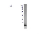 GTX121460-pro - S100A6 / Calcyclin