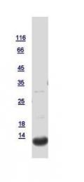 GTX121461-pro - Trefoil factor 1 / pS2